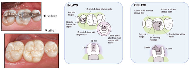 Inlay/Onlay Guide Trident Dental Laboratory